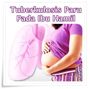 Pengobatan Herbal Tuberkulosis Paru Pada Ibu Hamil Yang Aman