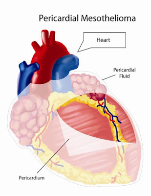 Pericardial Mesothelioma Symptoms Causes Treatment