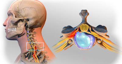 Progression and Diagnosis of Herniated Discs | Scientific Specialist