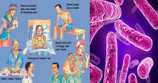 Obat Tbc Herbal, Obat Tbc Tulang, Obat Tbc Paru, Obat Tbc Kelenjar Pada Anak, Obat Tbc Anak, Obat Tbc Tulang Belakang, Obat Tbc Di Apotik, Obat Tbc Paling Ampuh, Obat Tbc Usus,