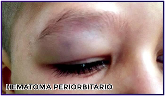 Hematoma o equimosis periorbitaria en la parte frontal del cráneo