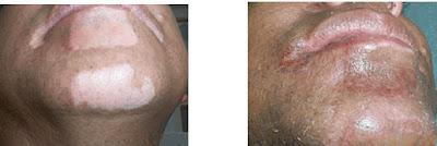 Vitiligo y la Miocropigmentación o Tatuaje