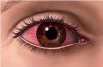 Sakit Mata Karena Las