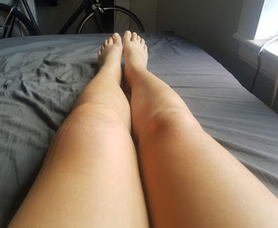photo showing a swollen left leg and unaffected right leg