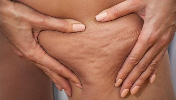 Fim Celulite 5 Fatores que Impedem Sua Remoção