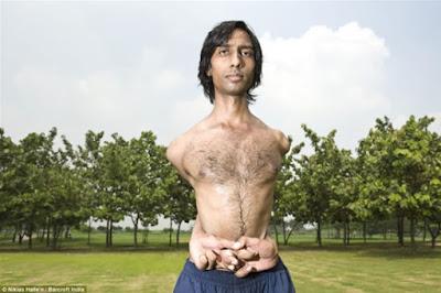 Lima Manusia Bertubuh Lentur di Dunia