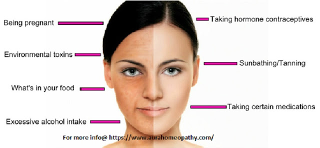 Treating Facial Pigmentation