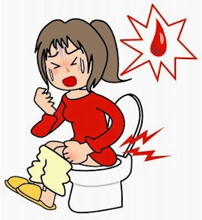 BAB sering disertai darah