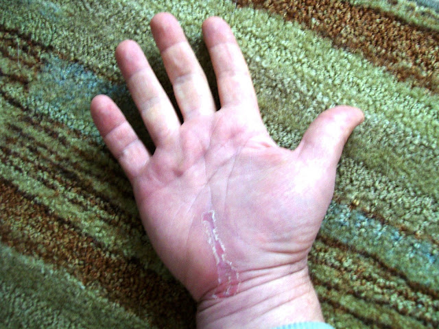 carpal tunnel ulnar nerve post op healing