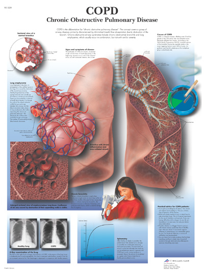 Adult disease lung