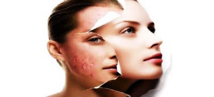 5 alimentos saudáveis que podem estar a causar acne e espinhas