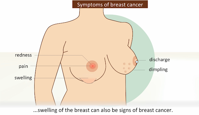 In my Family we have no history of breast cancer, can I still have it?
