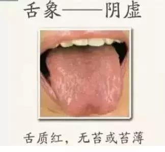 """舌頭是人體健康的""""放大鏡"""",教你看6種基本舌象!(血虛、水濕重)"""