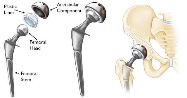 image-result-for-hip-replacement