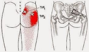 Dor no quadril Dor Ciática, Dor Glútea - Músculo Piriforme