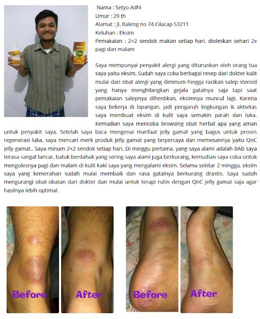obat penyakit kulit
