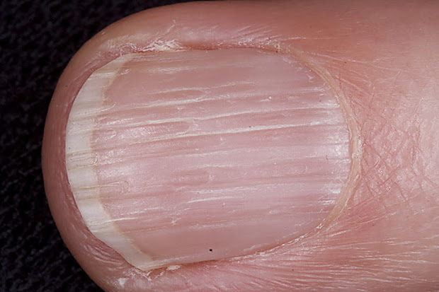 vertical lines in nails vitamin