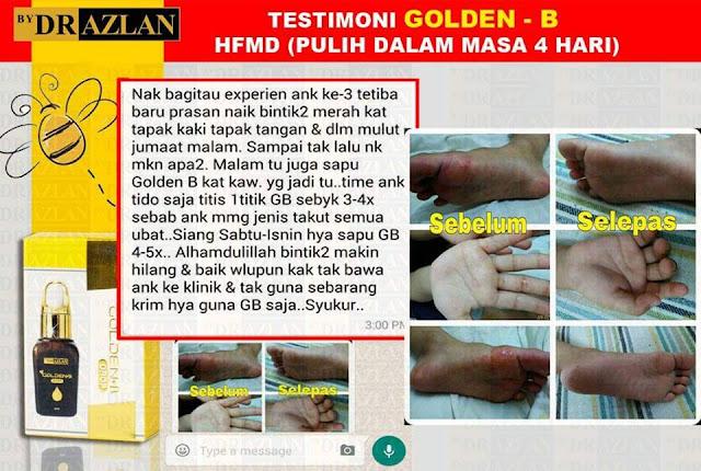 golden-b