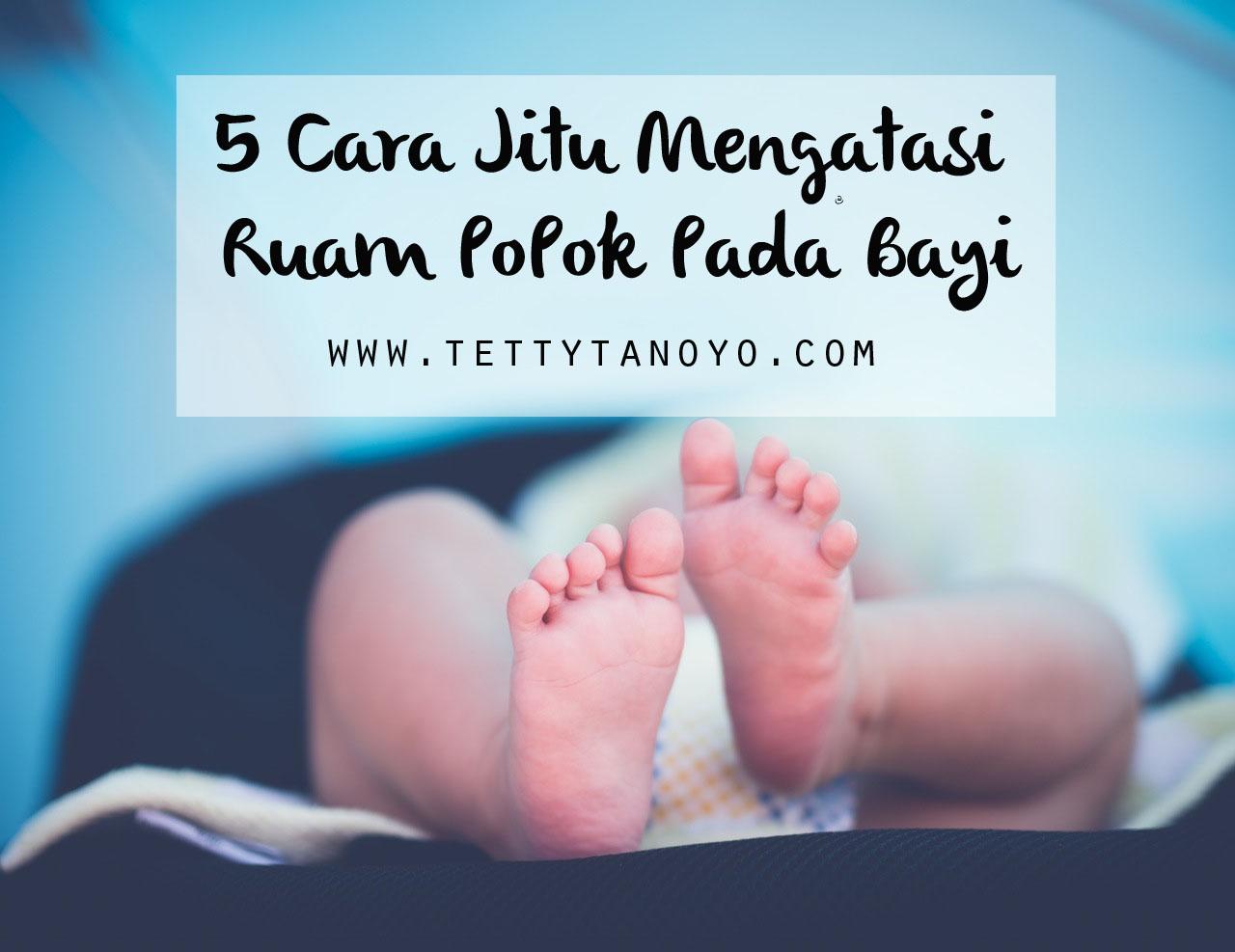 Cara Mengobati Ruam Popok Pd Bayi