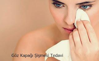 Göz Kapağı Şişmesi Tedavi