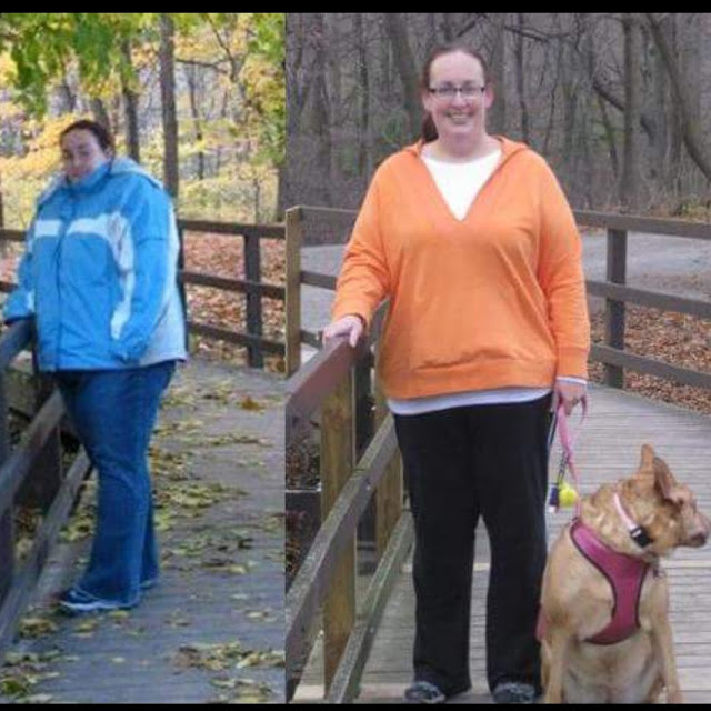 bariatric surgery, wls, weight loss surgery