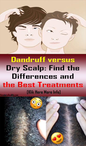 Dandruff versus Dry Scalp: Find the Differences and the Best Treatments #Health #Remedies
