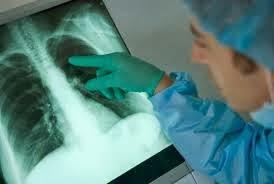 Cara alami menghilangkan flek paru paru
