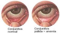 Mata Anemia