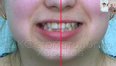 Фото проведения анализа средней линии улыбки.