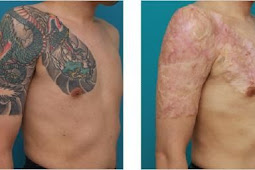 Ablation chirurgicale tatouage