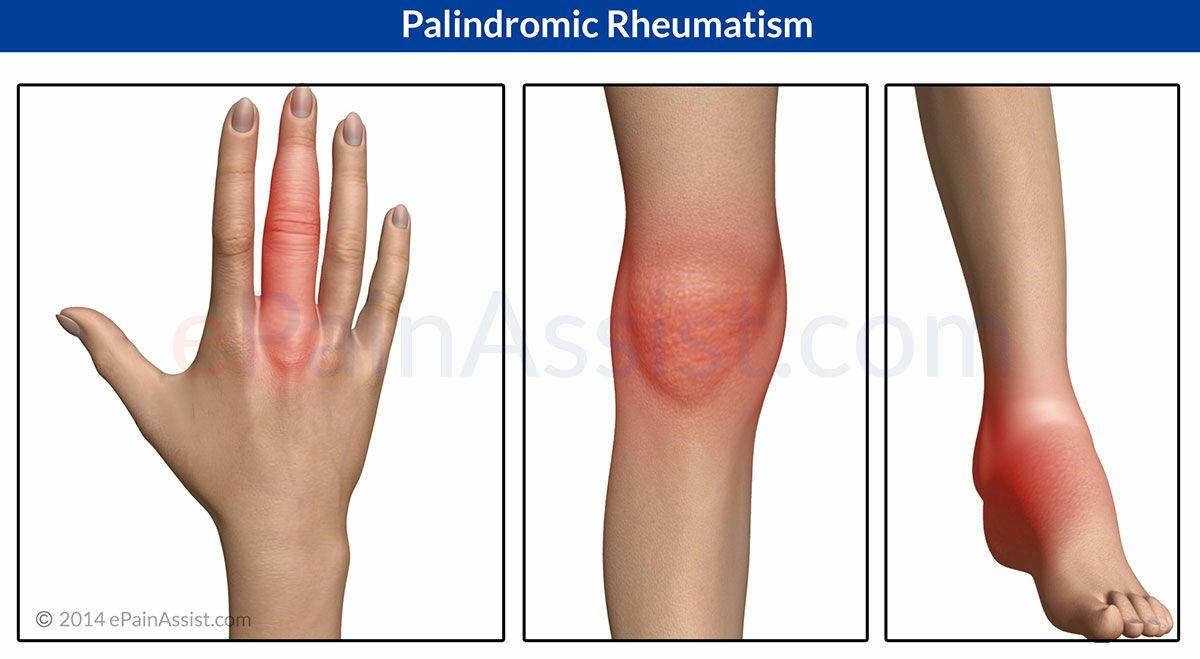 reumatismo palindromico diagnosi