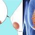 Remove Breast Cyst and Stop its Growth Naturally