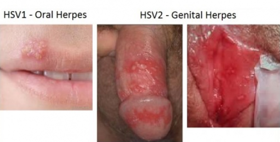 https://2.bp.blogspot.com/-mR1TV-eM7Ds/WJwGFsoZtMI/AAAAAAAAAVE/uOBBx0KYXocB9yYvN146bbwU4iGtYnBnACLcB/s1600/Ciri-Ciri-Penyakit-Herpes.jpg