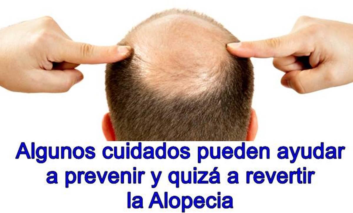 ¿Cómo se puede prevenir o revertir la alopecia?