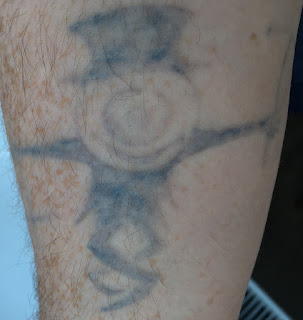 Tattoo before picosure laser removal