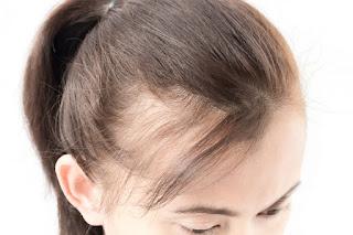 Perte de cheveux soudaine femme