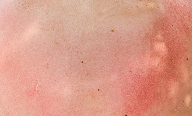 Djegja e Lëkurës nga Dielli, si reagon trupi dhe rreziqet