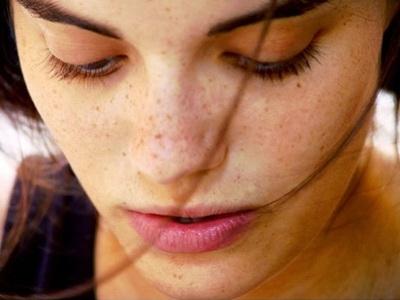Cara Menghilangkan Flek Hitam Di Wajah Akibat Pil KB