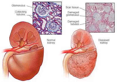 Nierenleiden Symptome