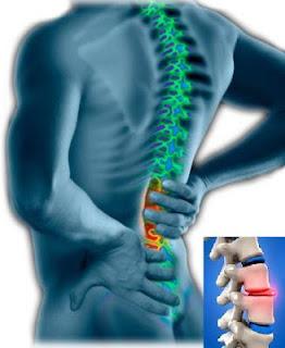 Image result for slip disc sakit tulang belakang