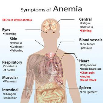 Cara menyembuhkan Anemia, Gejala dan Penyebabnya bisa dihindari