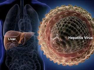 cara alami menyembuhkan hepatitis a