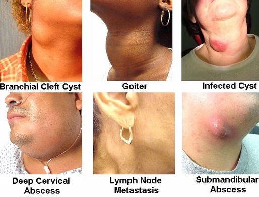 Image result for limfoma benjolan