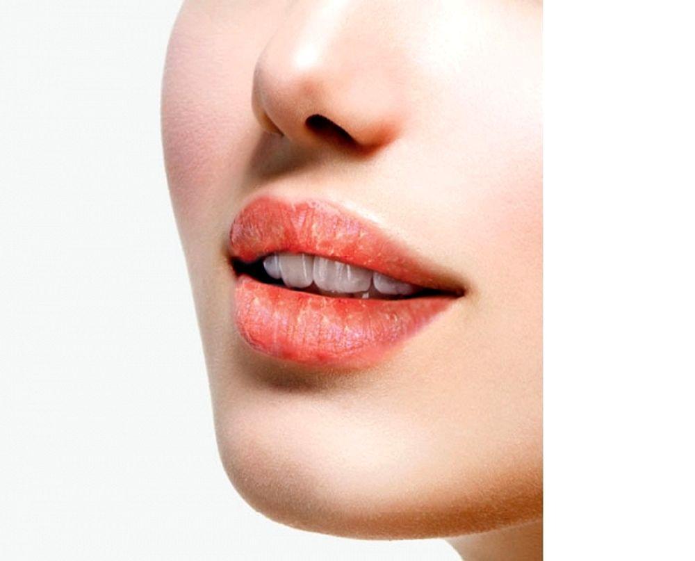Lesions Tongue