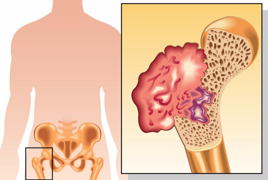 What Is Osteosarcoma Symptoms