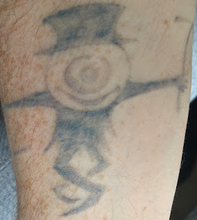 Tattoo Fading and Healing After Six Picosure Sessions