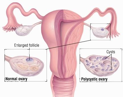 Image result for ovarium polikistik