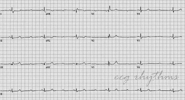 ECG Rhythms: ECG Practice