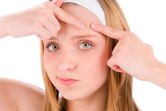 Jerawat kerikil memang merupakan salah satu permasalahan pada kulit wajah 6 Tips Menghilangkan Jerawat Batu Secara Cepat dan Alami