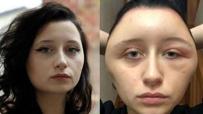 Francia: Una joven de 19 años, deformada y al borde de la muerte por teñirse el pelo